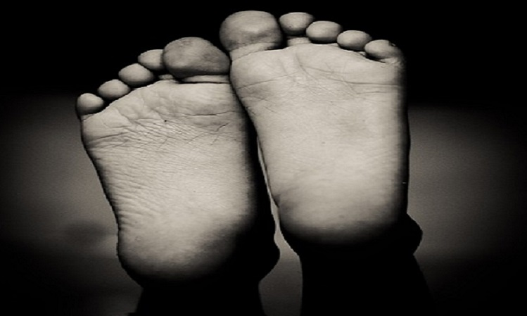 flat feet condition