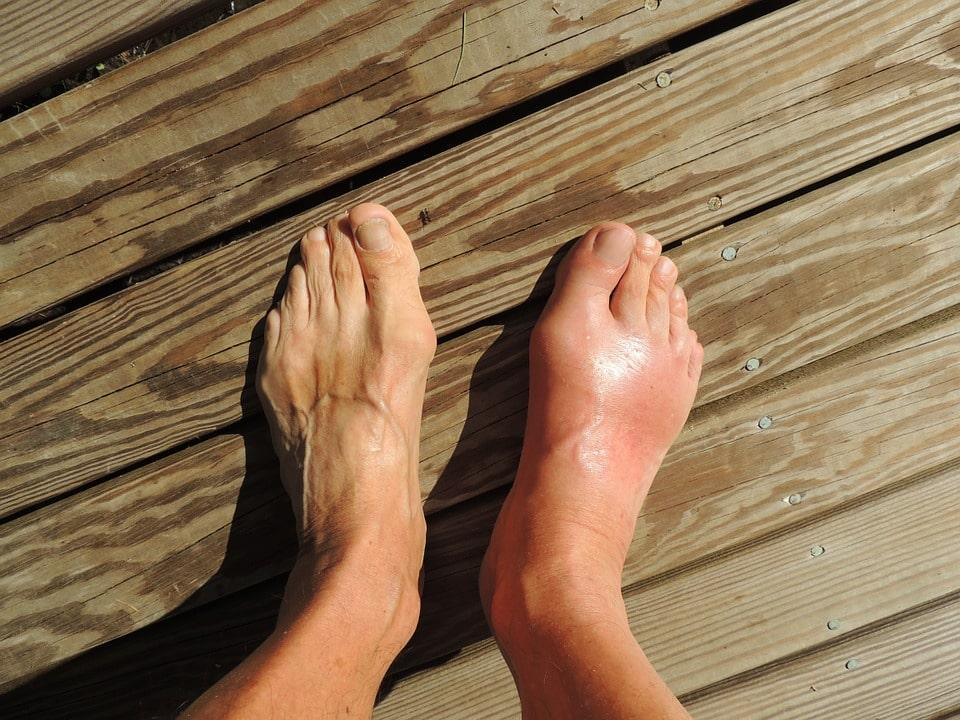 sore feet image